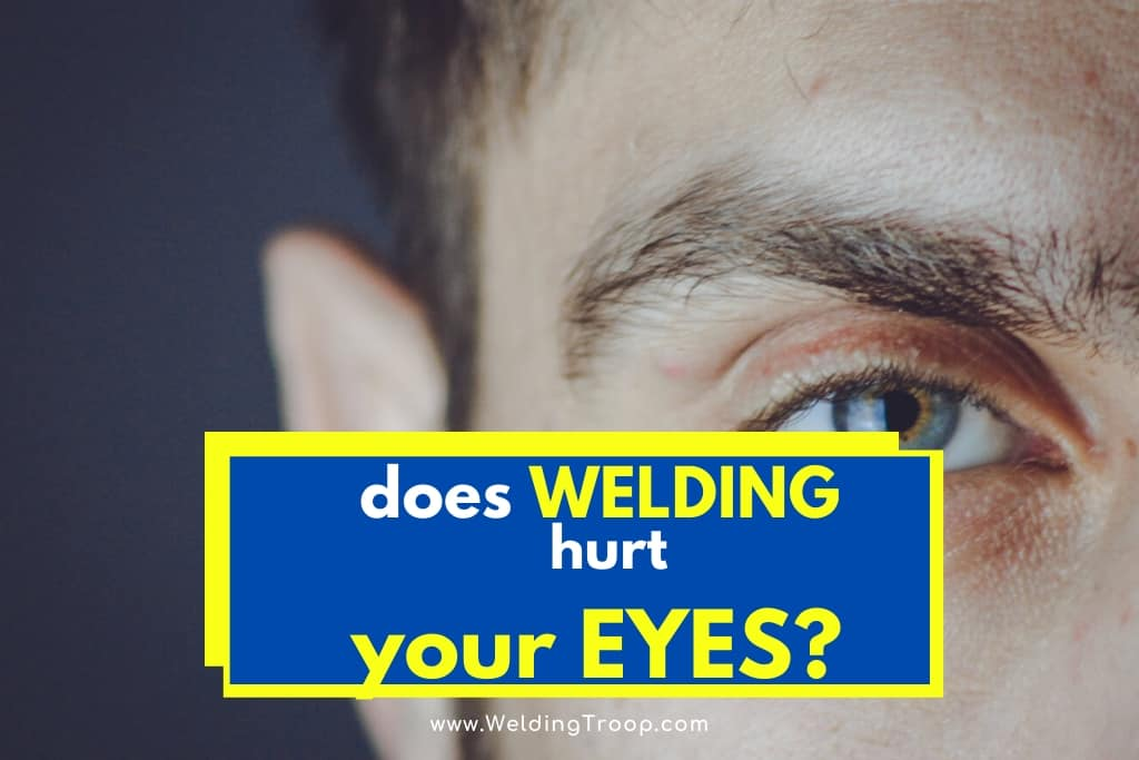What Are Some Eye Problems Caused by Welding