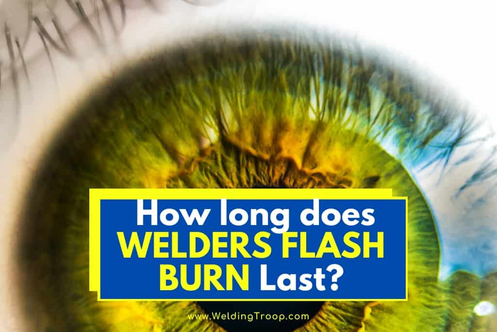 How Long Does Welders Flash Burn Last Symptoms And Treatments